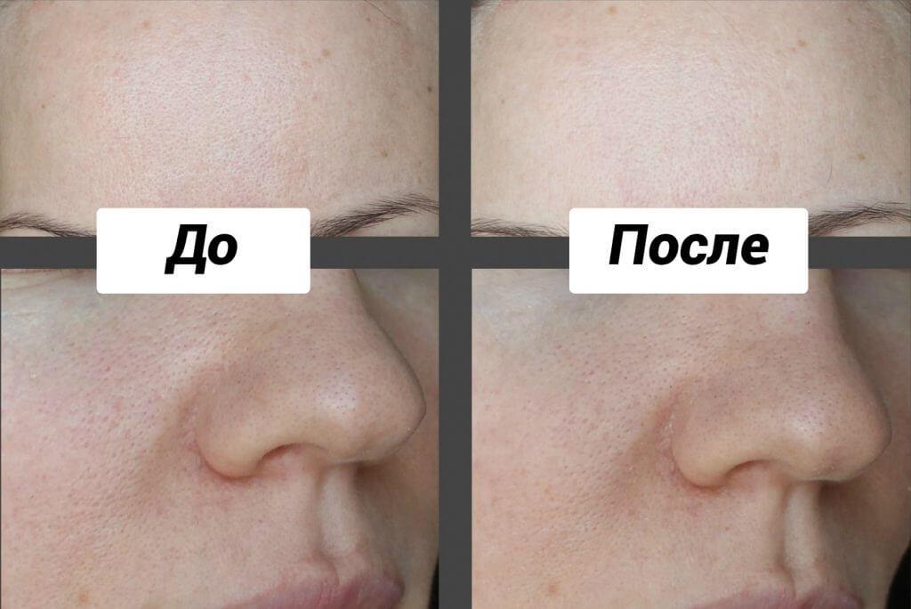 эффект после применения маски