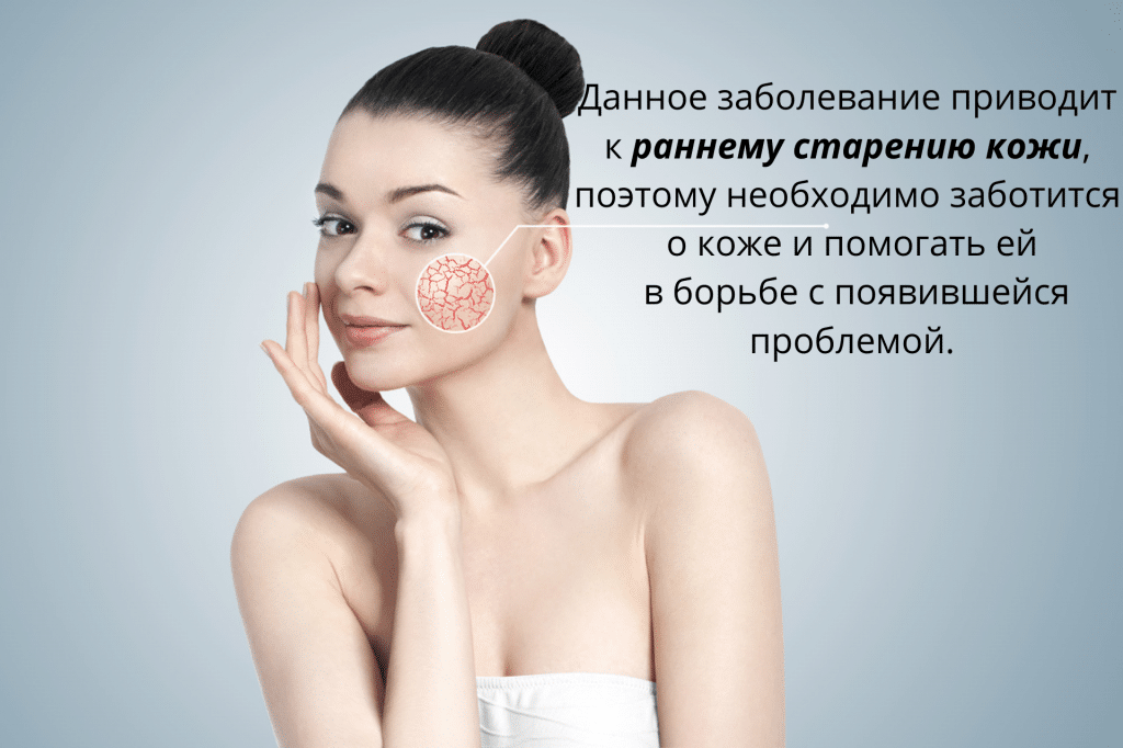 последствия купероза