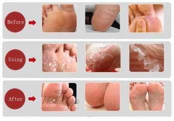 Shiny Foot Super Peeling Liquid Tony Moly отзывы