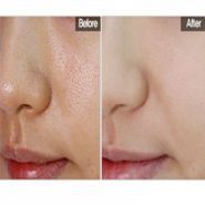 Secret Pore HD Powder
