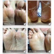 Natural Baby Foot Peeling Mask отзывы