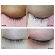 My Lash Serum отзывы