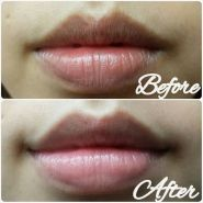 Kiss Kiss Lovely Lip Patch